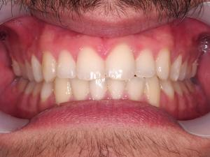 After Treatment - Front Teeth