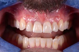 After-Fixing-Heavily-Broken-Down-And-Discoloured-Teeth-Case-Study-eDentistry-Wantirna