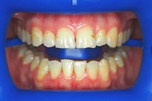 After-Getting-Rid-Of-Brown-Discoloured-Marks-On-Teeth-With-Whitening-Case-Study-eDentistry-Wantirna