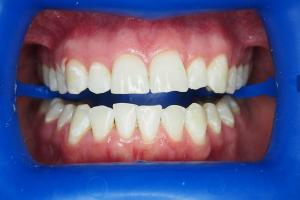 Before-Getting-Rid-Of-Brown-Discoloured-Marks-On-Teeth-With-Whitening-Case-Study-eDentistry-Wantirna