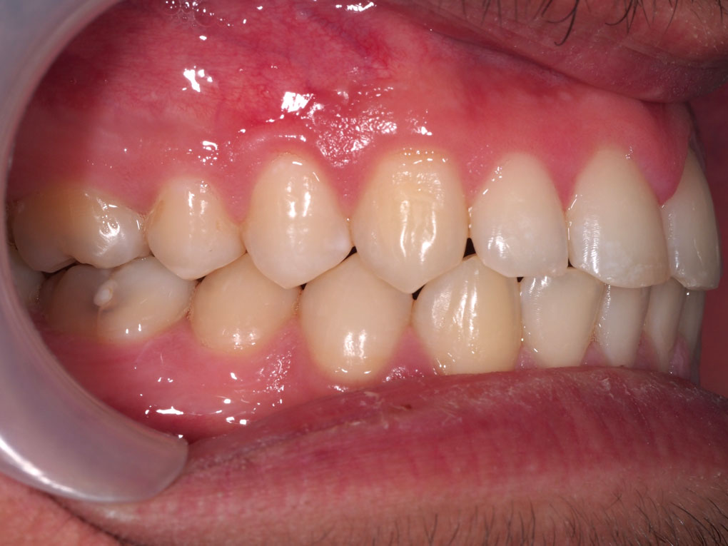 Digital Dentistry Treatment Without Tooth Extraction