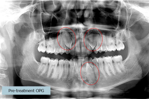 Pre treatment OPG red circles