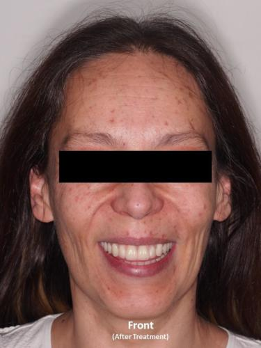 Frontal View of the Face - After Treatment