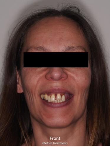 Frontal View of the Face - Before Treatment