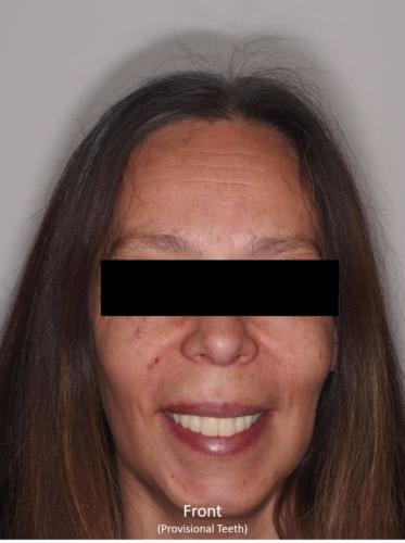 Frontal View of the Face - With Provisional
