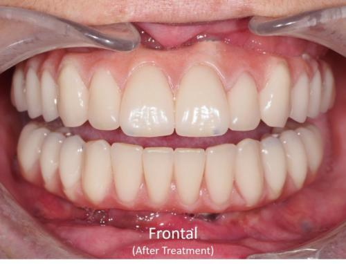 Frontal View of the Mouth - After Treatment