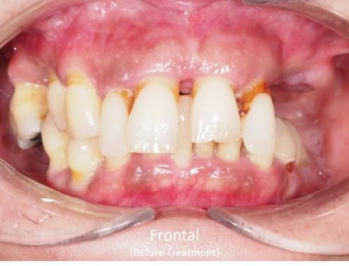 Frontal View of the Mouth - Before Treatment