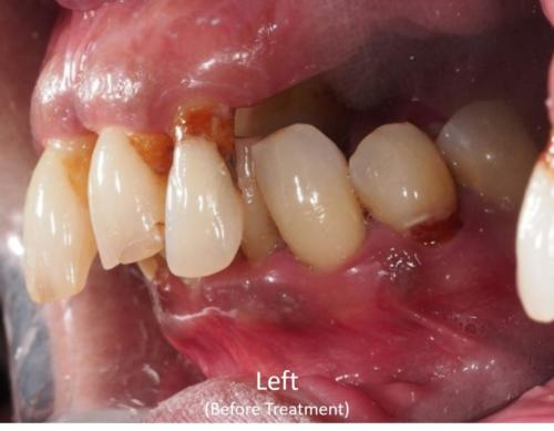Left View of the Mouth - Before Treatment