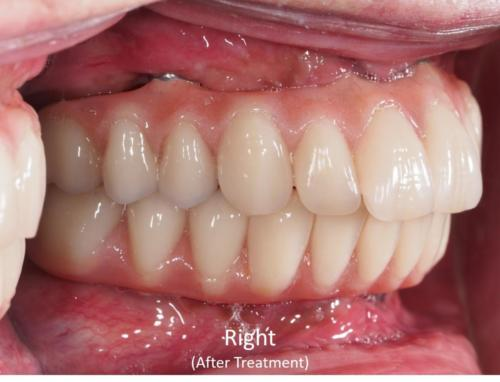 Right View of the Mouth - After Treatment