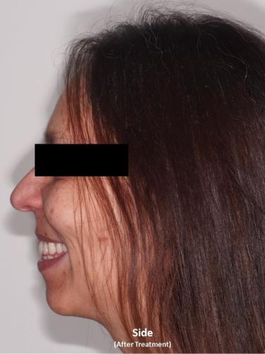 Side View of the Face - After Treatment