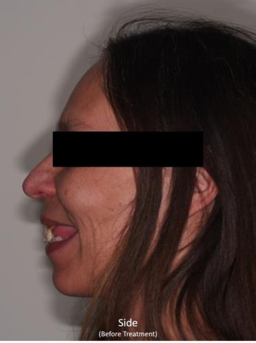 Side View of the Face - Before Treatment
