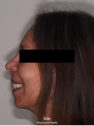 Side View of the Face - With Provisional